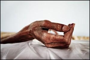 Diseased Hand